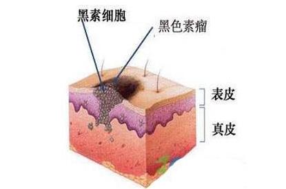 看部位:一般来说,摩擦部位如脚底,肘部,头皮的痣更易恶变,摩擦会让
